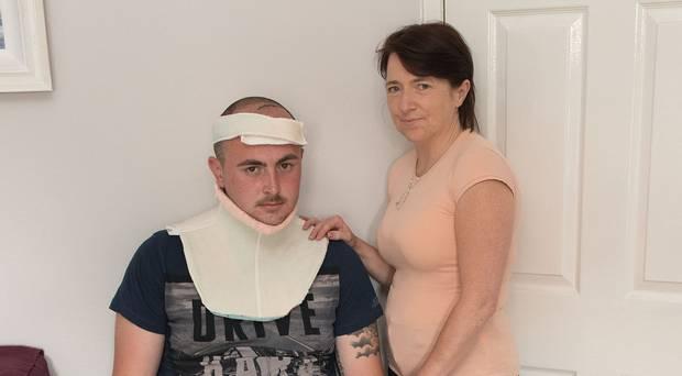 दुखद: एक और क्रिकेटर मौत के मुह में जाने से बचा, गर्दन से लेकर पैर तक टूट गये, सिर में हो गया गड्ढा 3