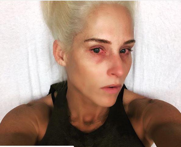 दिग्गज रैसलर, अंडरटेकर की पत्नी को आँख में आई गंभीर चोट 12
